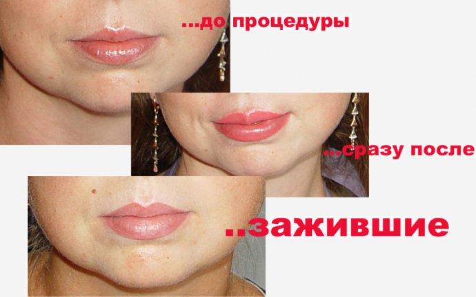 Все фото по тегу Фото Татуажа Губ До И После / perego-shop.ru