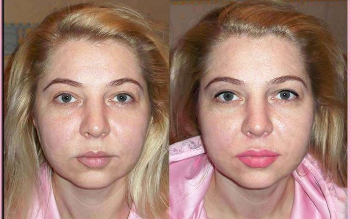 фото до и после татуаж